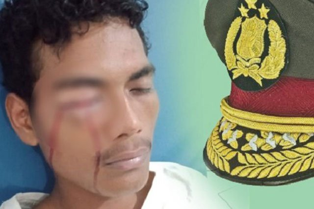 Pemuda Namrole Diduga Dipukul Oknum Polisi Hingga Matanya Bengkak